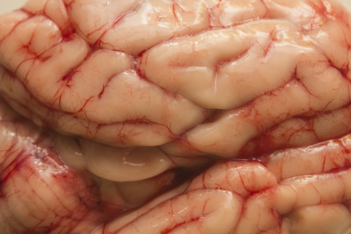 Top Brain, Bottom Brain, Part 3 – The Theory of Cognitive ...